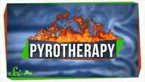 Pyrotherapy: An Awful Nobel Prize for Infecting People with Malaria